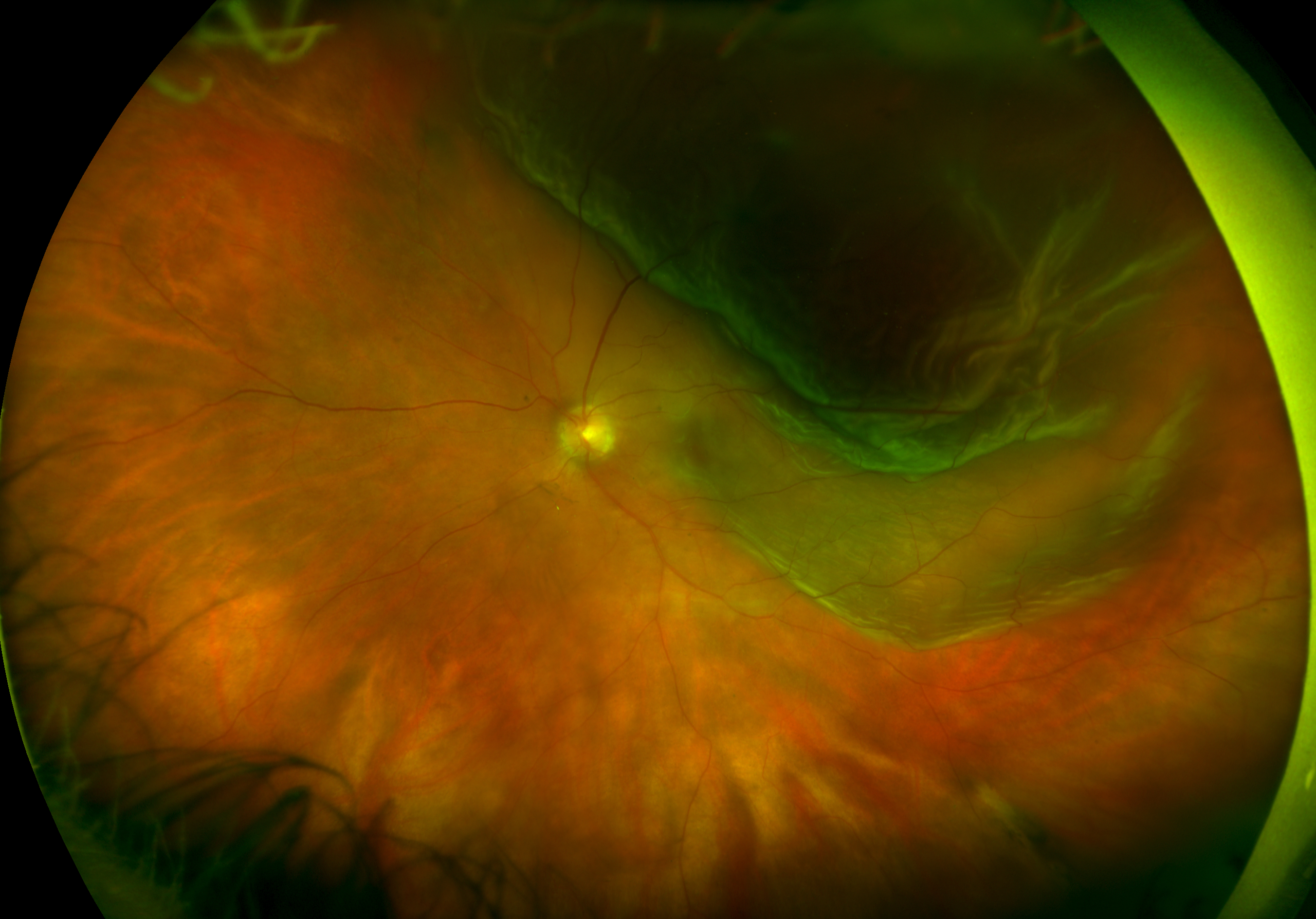 how to find your fundus