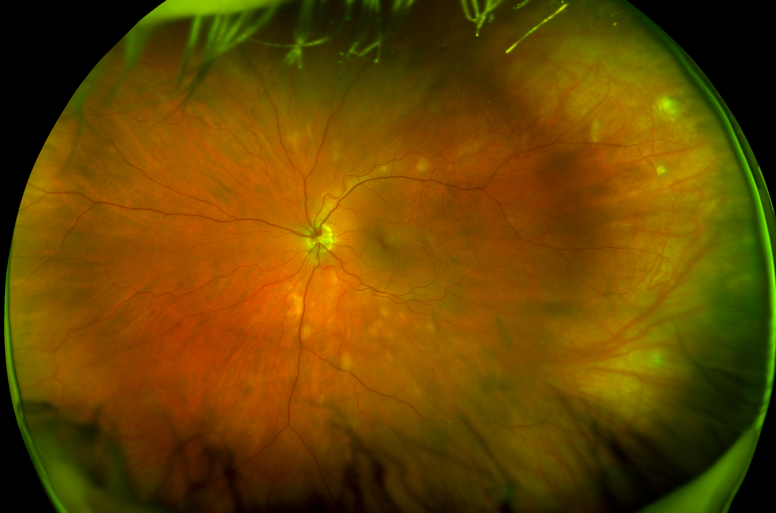 color birdshot versus posterior uveitis with plaques from sarcoidosis daytona