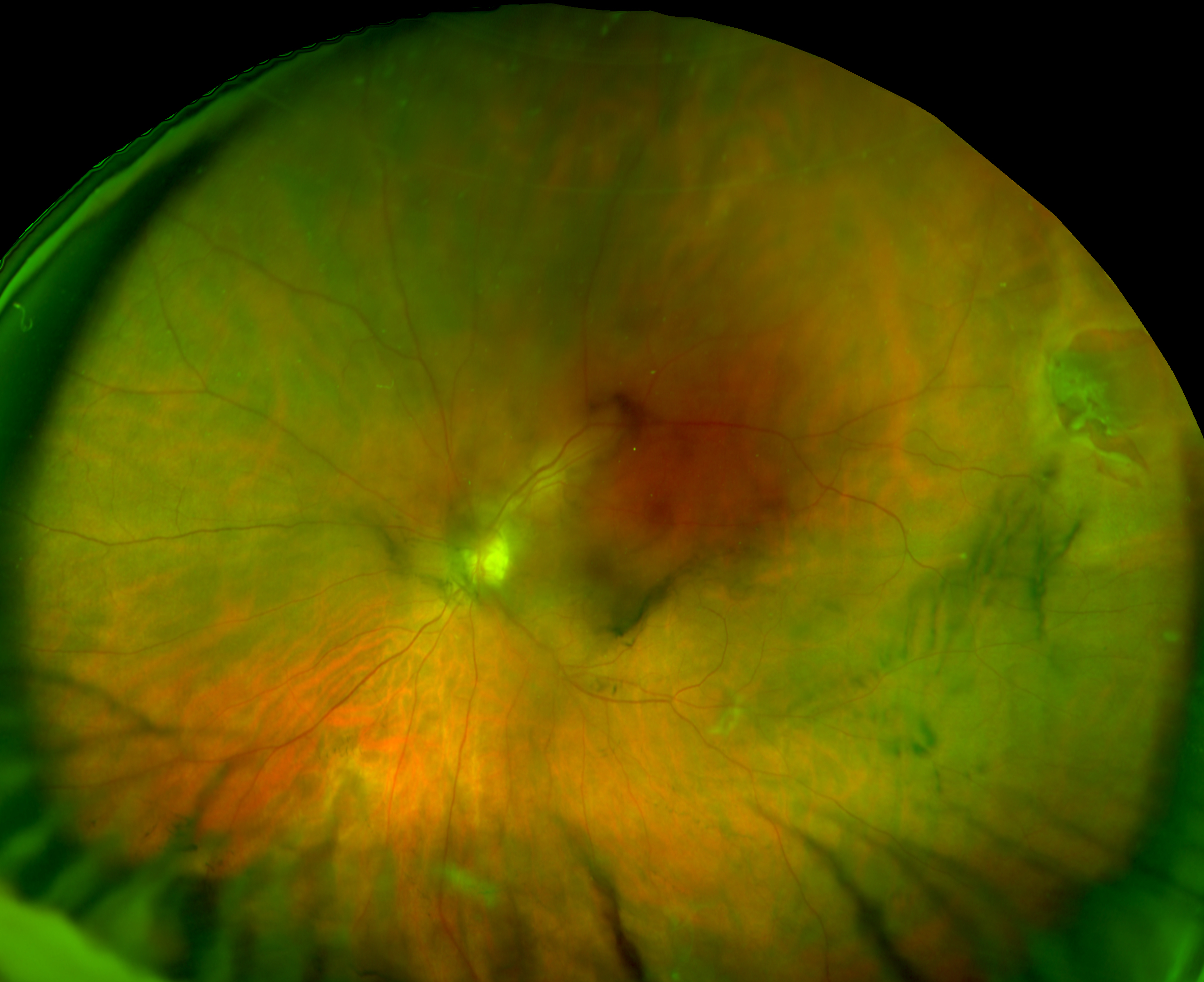 retinal holes and tears recognizing pathology optos