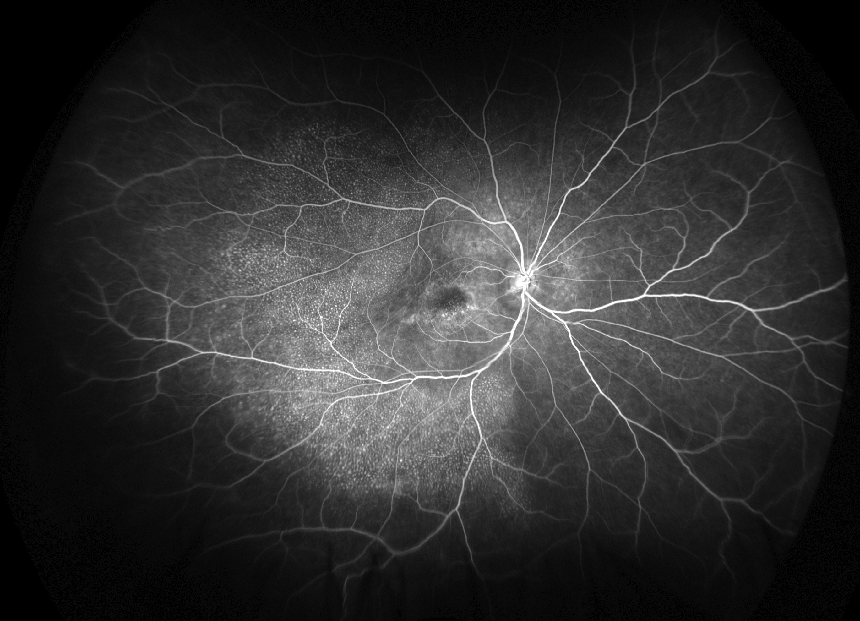macular dystrophy retina - photo #33