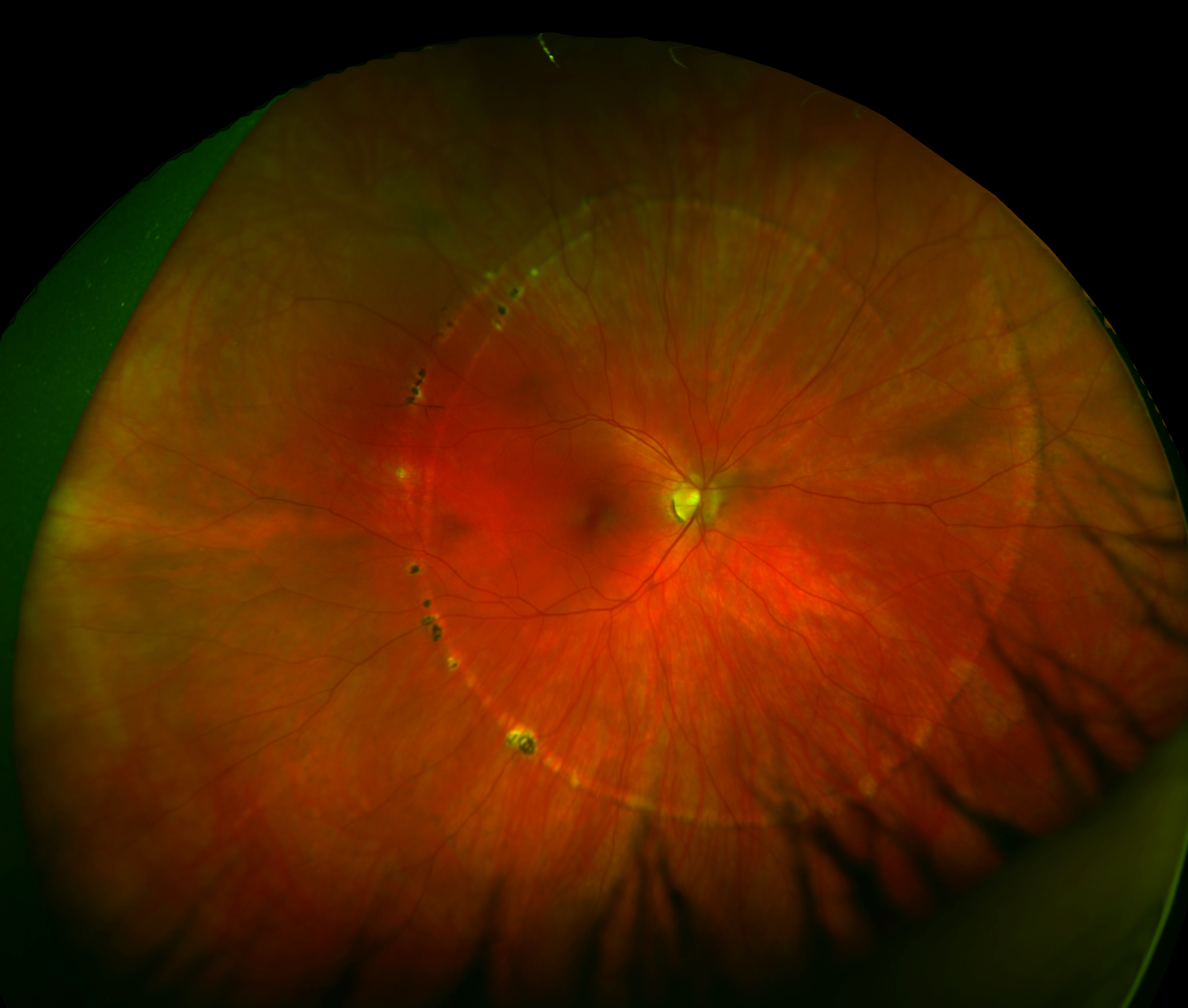 Exceptional Color   POHS   P200Tx Regarding Presumed Ocular Histoplasmosis
